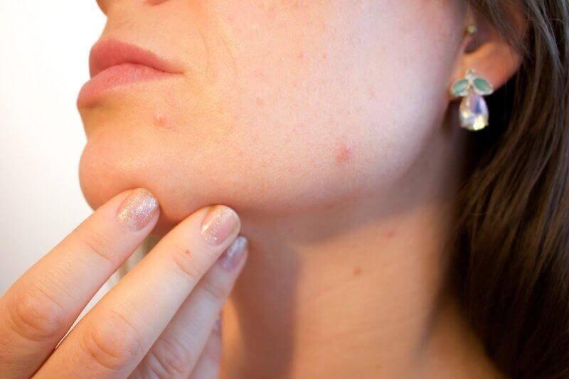 cbd oil and acne