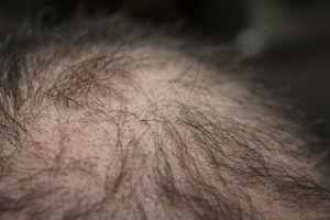 Male pattern baldness cbd